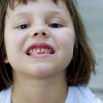 5322449 - portrait of 5 years old gap toothed girl